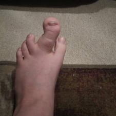 기형 발가락