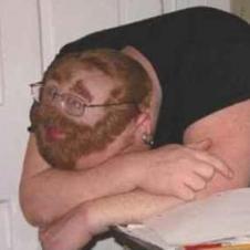 잠을 위해서 머리숱을 포기한 남자